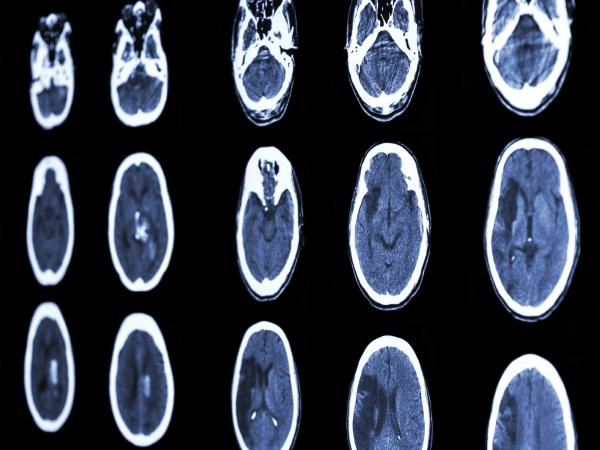 Film CT scans show these people have suffered strokes.