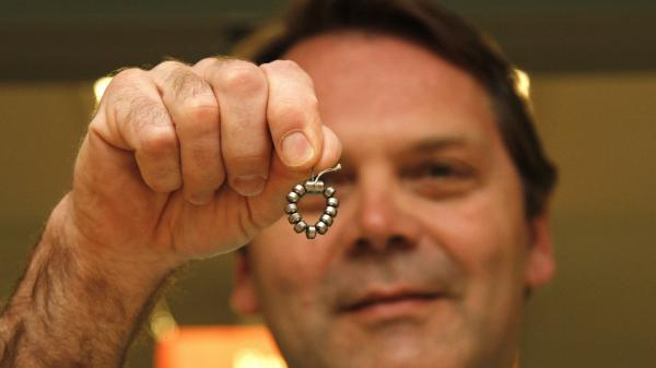 Dr. Ted Trus holds a magnetic ring of beads called a LINX. It has been approved by the Food and Drug Administration for people who aren't helped by medications.