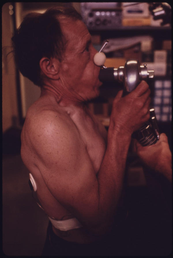 A miner at the black lung laboratory in the Appalachian Regional Hospital in Beckley, W.Va., has his lung capacity tested. Blood samples were also taken and his heartbeat was monitored while walking on a treadmill. These and other tests were used to determine if miners had coal dust particles in their lungs.