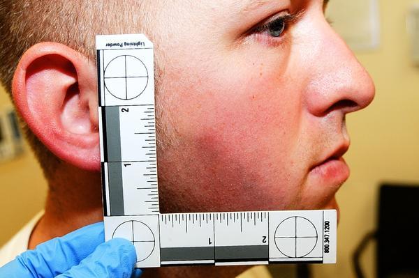Ferguson police Officer Darren Wilson during his medical examination.