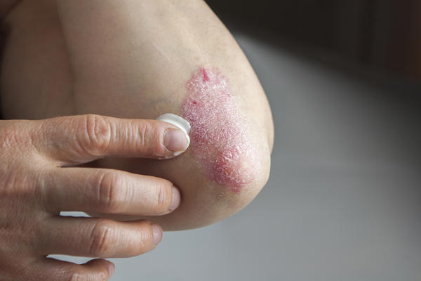 A patch of psoriasis on an elbow.