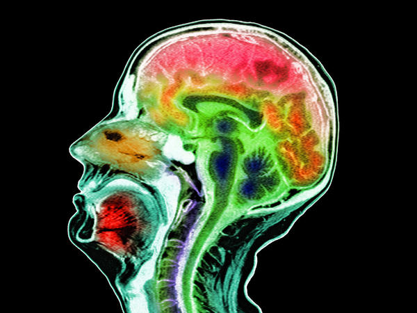 When combined with results of other neurological tests, and in the context of a thorough medical history, atrophy of the brain (shown here in an MRI scan) sometimes indicates Alzheimer's.