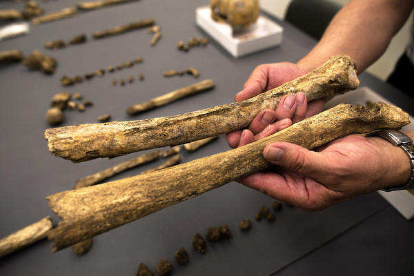 Owsley holds thigh bones from two different skeletons. The one above has a ridge that suggests the man may have had muscular legs — perhaps from riding horses.