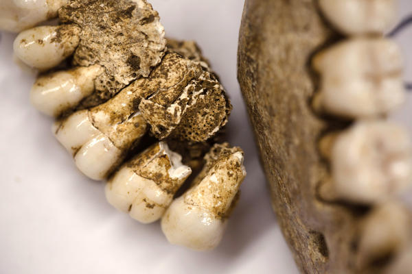 Owsley says the teeth of the skeletons show signs of decay that would have been painful when the men were alive.