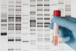 A test commonly referred to as a 'rape kit' can help identify an attacker through DNA analysis.