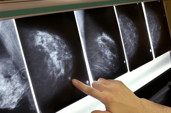 In a study of 1.3 million women, ages 40 to 74, having a false positive on a screening mammogram was associated with a slightly increased chance that the woman would eventually develop breast cancer. The extra risk seemed to be independent of the density of her breasts.