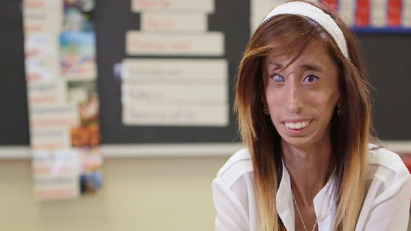Lizzie Velasquez shares about getting a diagnosis and what her definition of beauty is.