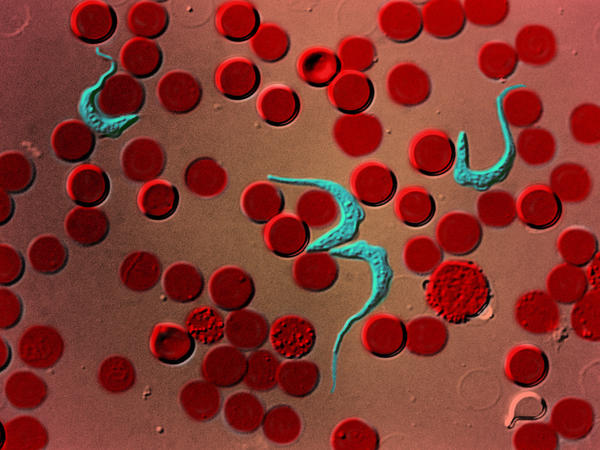 A colored-in microscopic image of the parasite that causes African sleeping sickness (teal) among red blood cells.