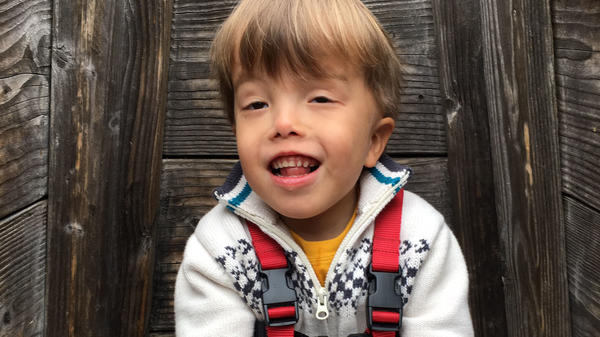 Milo Lorentzen is 5 years old, and is one of only three people in the world known to have a mutation in a gene called KDM1A.