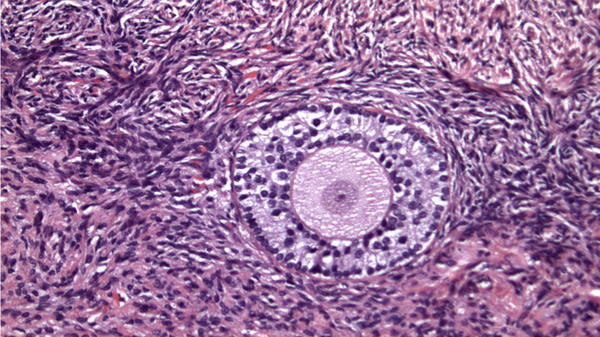 Ovarian tissue after the thaw — ready for reimplantation.