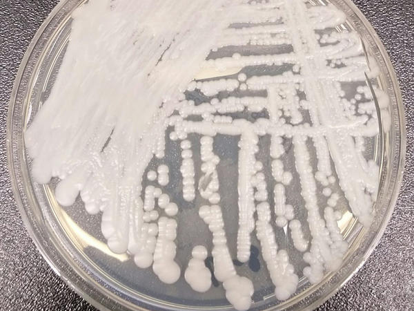 <em>Candida auris</em> is a fungus that can cause invasive infections, is associated with high mortality and is often resistant to multiple antifungal drugs, says the Centers for Disease Control and Prevention.