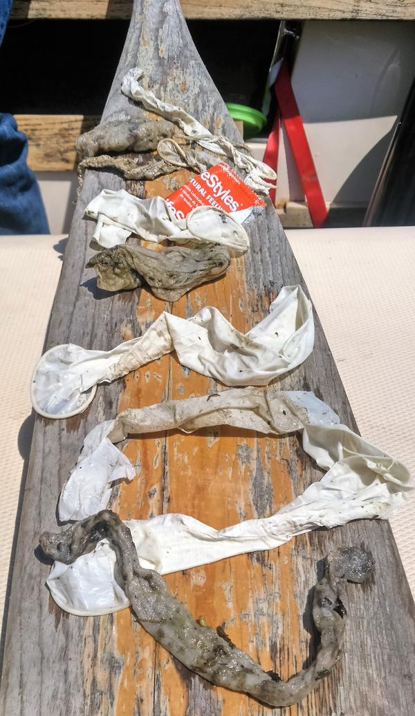 Mark Mattson from the Lake Ontario Waterkeeper shows some of the used condoms and floatables found in Lake Ontario, July 2016.
