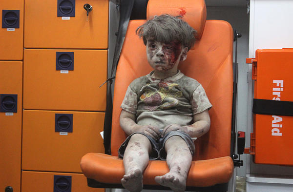 A 5-year-old boy, identified in news reports as Omran Daqneesh, sits in an ambulance after reportedly being pulled out of a building hit by an airstrike in Aleppo, Syria.
