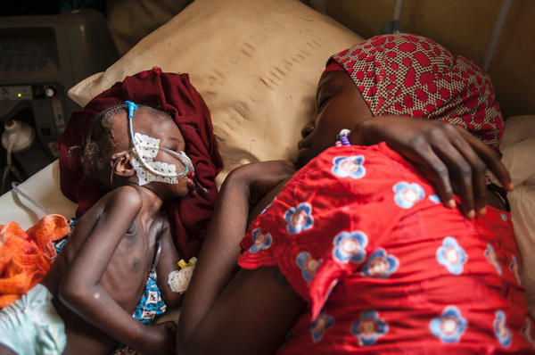 A woman and a child suffering from severe malnutrition sleep on a bed at a therapeutic feeding center in northeastern Nigeria.