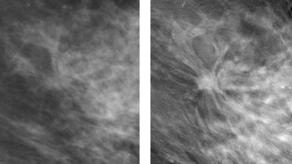 Side-by-side comparisons of a conventional mammogram in which a breast cancer is hidden, and a new 3-D mammogram of the same breast that reveals a malignant tumor.