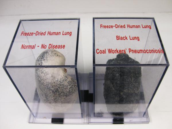 A display case at NIOSH shows a normal lung and a diseased black lung from inhaling coal dust and other harmful particles while coal mining.