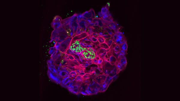 A human embryo kept alive in the lab for 12 days begins to show signs of early development. The green cells seen here in the center would go on to form the body. This embryo is in the process of twinning, forming two small spheres out of one.