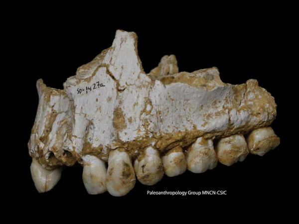 A dental calculus deposit is visible on the rear molar (right). The teeth belong to the sick boy in the Spanish cave. He was eating poplar, a source of aspirin, and vegetation with mold, including the fungus <em>Penicillium, </em>which is the<em> </em>source of the antibiotic penicillin.