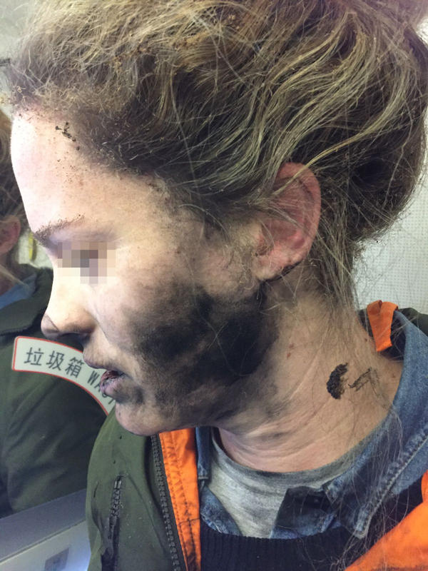 A photo provided by the Australian Safety Transport Bureau shows an airplane passenger whose headphones caught on fire midflight.