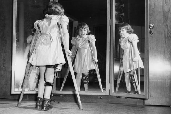 Many people infected with polio don't show any symptoms. Some become temporarily paralyzed; for others, it's permanent. In 1952, the polio epidemic reached a peak in U.S.: almost 58,000 reported cases and more than 3,000 deaths.