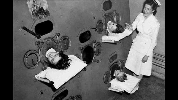 During the peak of the polio epidemic in the U.S., some hospital wards even had large, room-like iron lungs where multiple children lived.