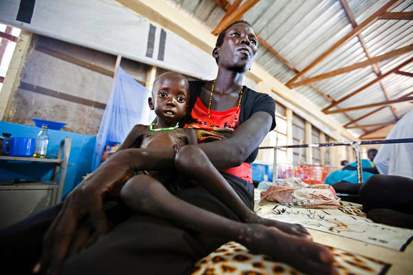 Lucia Adeng Wek holds her 3-year-old son, Wek Wol Wek, who suffers from malnutrition. They're at a clinic in South Sudan run by Doctors without Borders and were photographed on October 11, 2016.