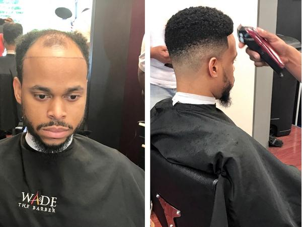 Robert Jenkins before and after barber Wade Menendez installed his hair unit, aka man weave.