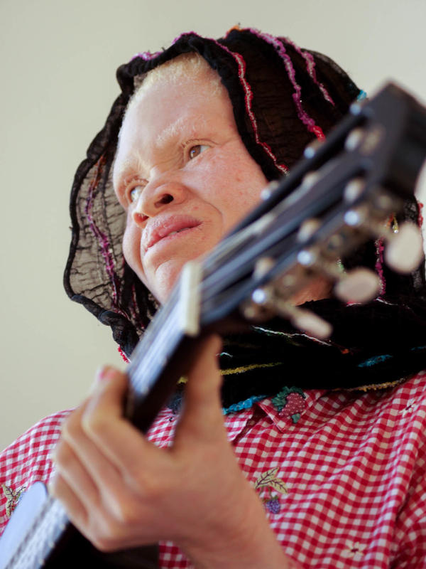 "Thereza Phinias, a member of the Tanzania Albinism Collective, wrote a song called ""Happiness."""
