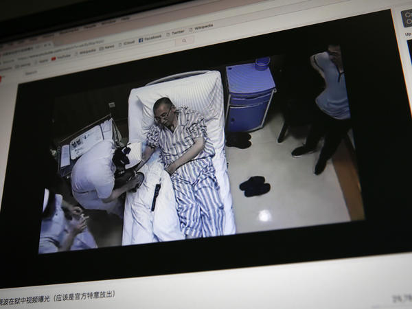 A video clip shows China's jailed Nobel Peace laureate Liu Xiaobo on a computer screen, lying on a bed receiving medical treatment at a hospital in Beijing. China says it has invited U.S. and German liver cancer experts to join a medical team treating Liu.