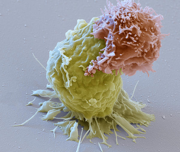 Image of a CAR-T cell (reddish) attacking a leukemia cell (green). These CAR-T lymphocytes are used for immunotherapy against cancer (CAR stands for chimeric antigen receptor). After the proliferation of the CAR-expressing T cells, they are transfused back into the patient and can directly detect the cancer cells carrying the antigen.