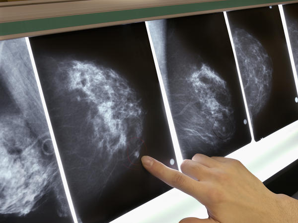 A new study suggests that some small tumors are small because they are biologically prone to slow growth.