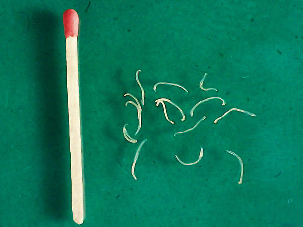 Adult hookworms, from a dog. The larva, which penetrate the skin, are even smaller.