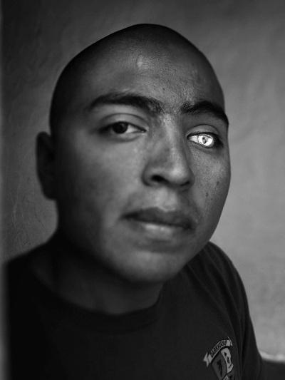 Lance Cpl. Josue Barron lost his left leg and left eye in Sangin, Afghanistan, while serving with the 3/5 Marines from Camp Pendleton, Calif. He now has a glass eye that is emblazoned with the 3/5 insignia.
