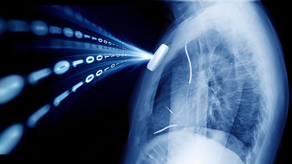 Hugo Campos' implantable cardioverter-defibrillator was a mystery to him. So he decided to ask his doctor for access to the data. He made this image with one of his own X-rays.