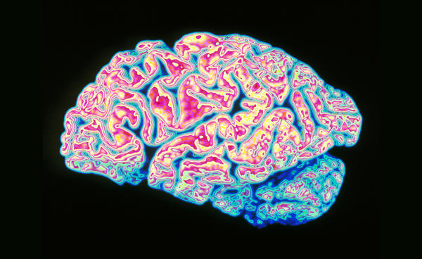 Alzheimer's disease causes atrophy of brain tissue. The discovery that lymph vessels near the brain's surface help remove waste suggests glitches in the lymph system might be involved in Alzheimer's and a variety of other brain diseases.