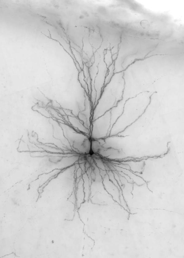 Researchers injected dye into this human neuron to reveal its shape.