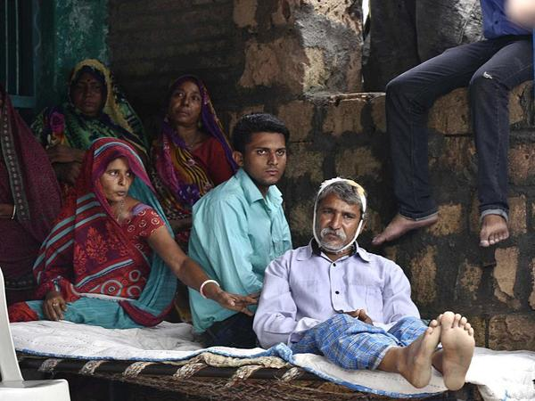"""The man with the bandaged heads is one of the four members of the Dalit community who were flogged with iron rods and pipes on July 11 by group of self-styled """"cow protectors."""""""