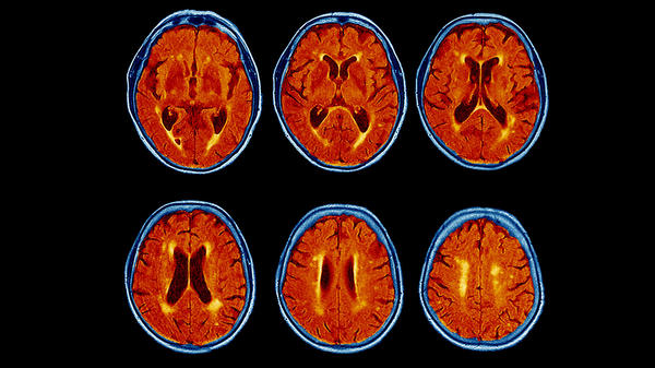 A colored magnetic resonance imaging (MRI) scans of the brain of a 76-year-old patient with dementia shows the brain has atrophied and the dark brown fluid-filled spaces have become enlarged.