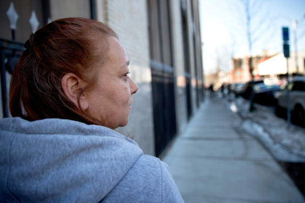 Lisa, a client at the AAC Needle Exchange and Overdose Prevention Program in Cambridge, Mass. Nearly five years after an opioid overdose she still limps — possibly because of damage the drug cocktail did to her nerves or muscles.