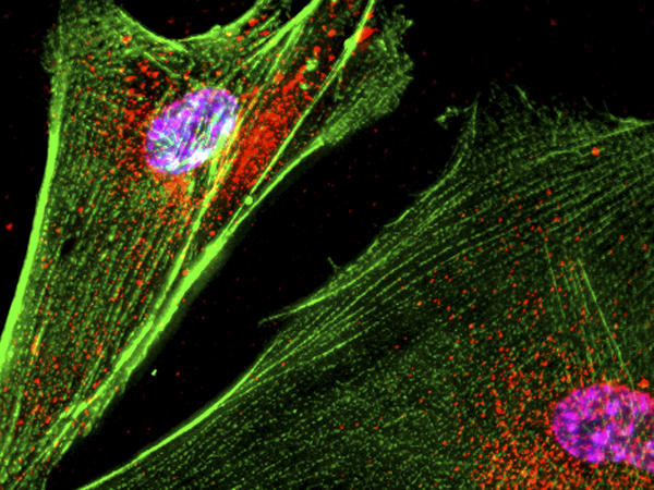 When the neurons that release the neurotransmitter dopamine die, people develop Parkinson's disease.