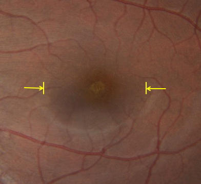 Doctors in New York used optical coherence tomography to examine retina damage caused by the August solar eclipse.