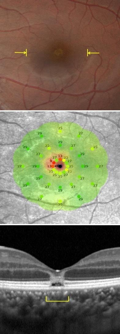 The area between the yellow brackets in the top photo shows the damage to the center part of the retina. The middle image is a type of visual field test and the bottom image uses optical coherence tomography.