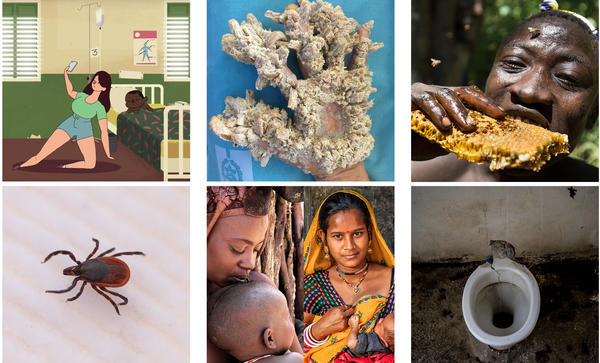 """Clockwise from top left: Bad selfie; """"tree man"""" disease; Hadza man eating honeycomb; toilet from Amber, India; mothers from Namibia's Himba tribe and deer tick."""