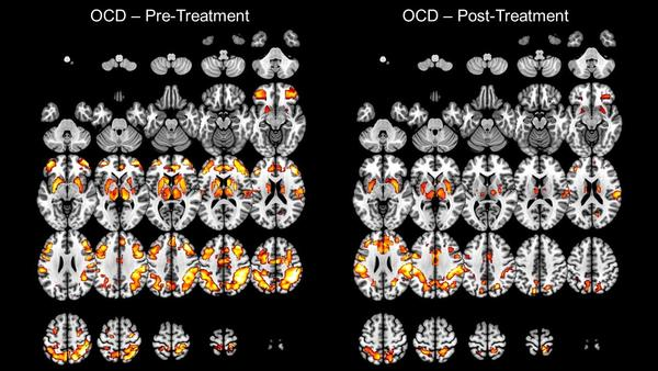 On the left is a brain scan of someone with OCD before treatment. On the right is after treatment.
