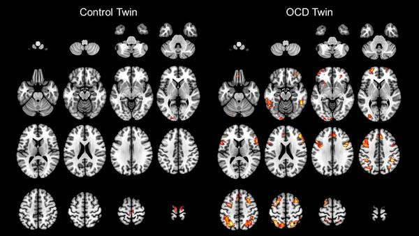 Brain scans of twins. One has OCD and one does not.