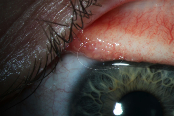 "<p>A transparent eye worm on the surface of a patient's conjunctiva.</p> <h2 style=""margin: 7px 0px 0px !important; padding: 10px 0px 0px !important; border: none !important; font-size: 13px !important; vertical-align: baseline; clear: both; line-height: 1.25em !important; color: #999999; overflow: hidden; text-align: left; -webkit-font-smoothing: subpixel-antialiased; background-image: none !important; background-position: initial !important; background-size: initial !important; background-repeat: initial !important; background-attachment: initial !important; background-origin: initial !important; background-clip: initial !important; background-color: #e6e6e6; display: none; font-style: normal; font-variant-caps: normal; font-variant-ligatures: normal; font-variant-numeric: normal !important; font-variant-east-asian: normal !important; font-weight: normal !important; font-stretch: normal !important; font-family: 'Helvetica Neue', sans-serif; letter-spacing: normal; text-shadow: none !important; text-transform: none; orphans: 2; text-indent: 0px; white-space: normal; widows: 2; word-spacing: 0px; -webkit-text-stroke-width: 0px; text-decoration-style: initial; text-decoration-color: initial;"">\</h2>"