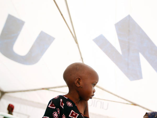 <p>Madow Weydow, 3, from Somalia, sits in an eastern Kenyan hospital near the Somali border. Madow is suffering from anorexia and severe malnutrition. </p>