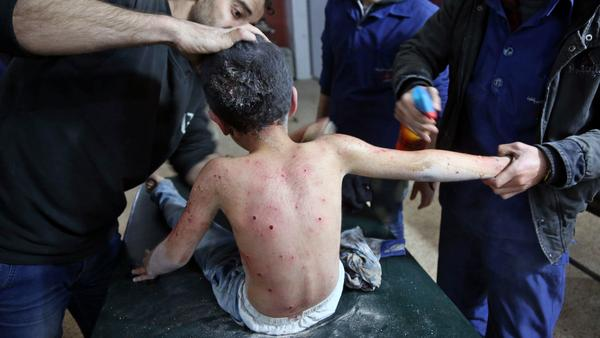 A wounded Syrian boy receives treatment at a makeshift hospital following attacks on the rebel-held town of Hamouria, in the besieged Eastern Ghouta region on the outskirts of the capital Damascus, on Monday.