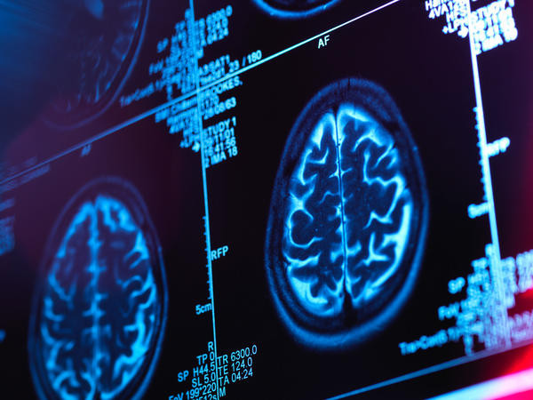 Researchers can examine brain tissue at a microscopic level, looking in specific areas for changes that cannot be seen on scans while the person is alive.