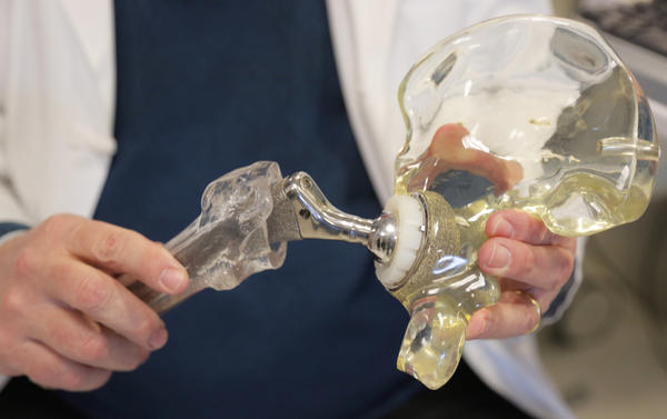 Dr. Joshua Jacobs, an orthopedic surgeon, displays a model of a cementless hip replacement in 2014.